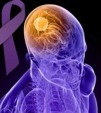 Ce este epilepsia