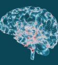 Alzheimer - boala fara remediu